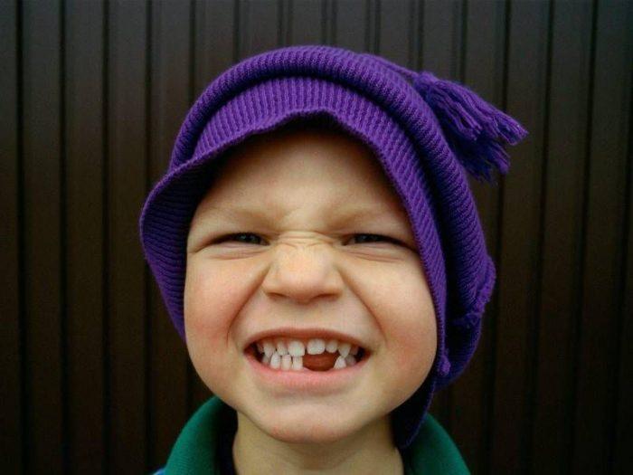 Хохотай: улыбка способствует тренировке мышц лица