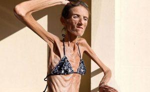 Что такое анорексия, или как выжить в погоне за красотой?