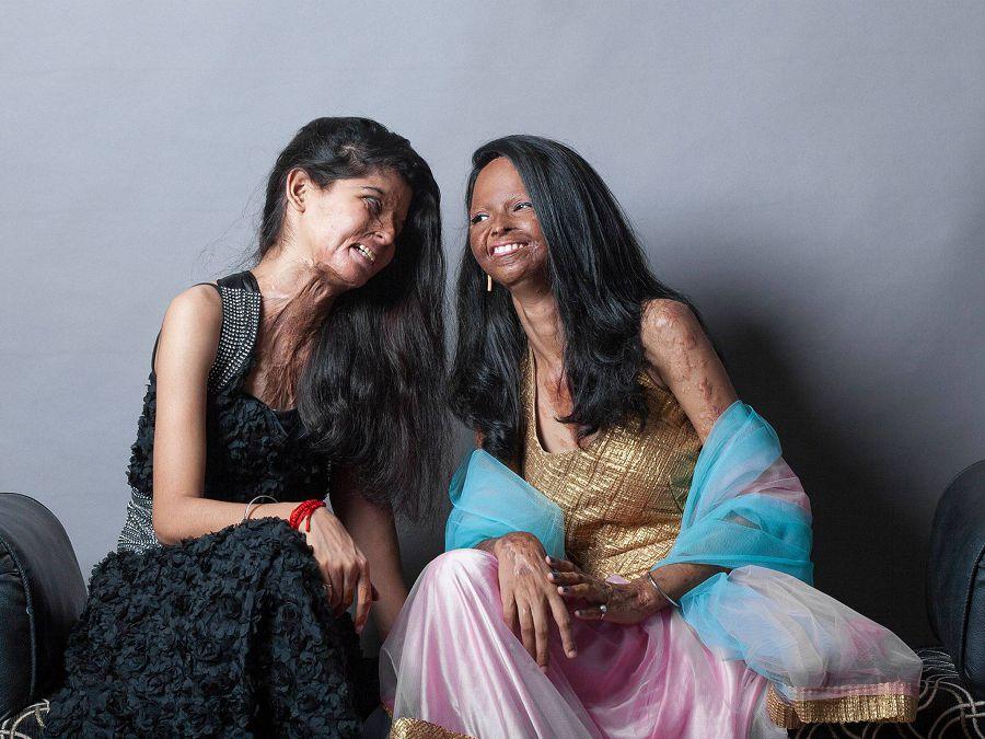 фотосессия индийских женщин, изуродованных кислотой