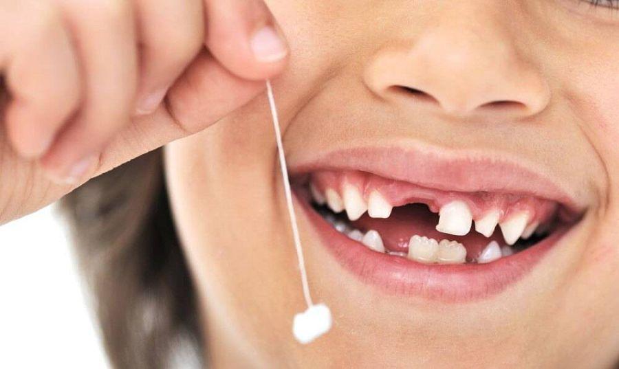 выпавший зуб