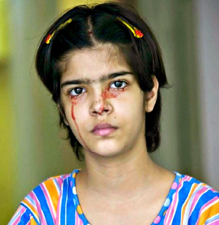 девочка плачет кровью