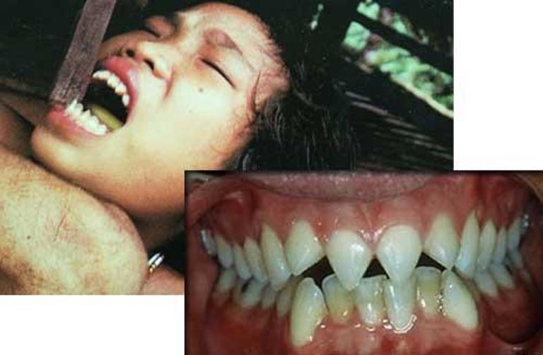 красота. Скалывание зубов у женщин племени ментавай