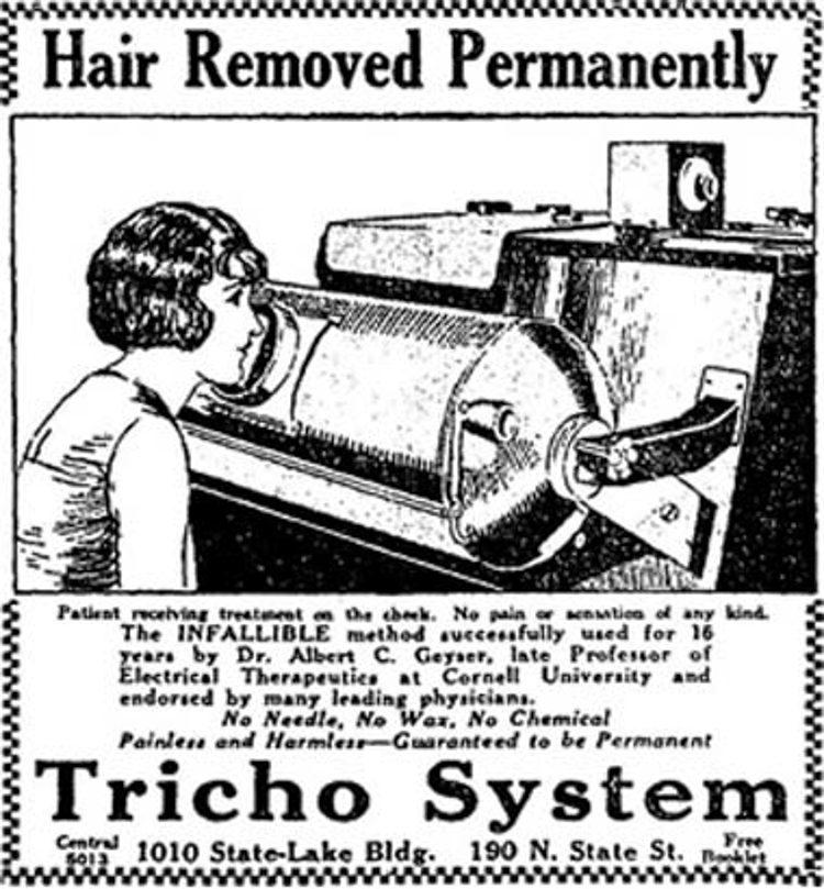мода. Рентгеновские лучи для удаления волос на теле
