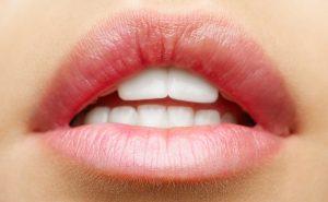 Как избавиться от сухости на губах?