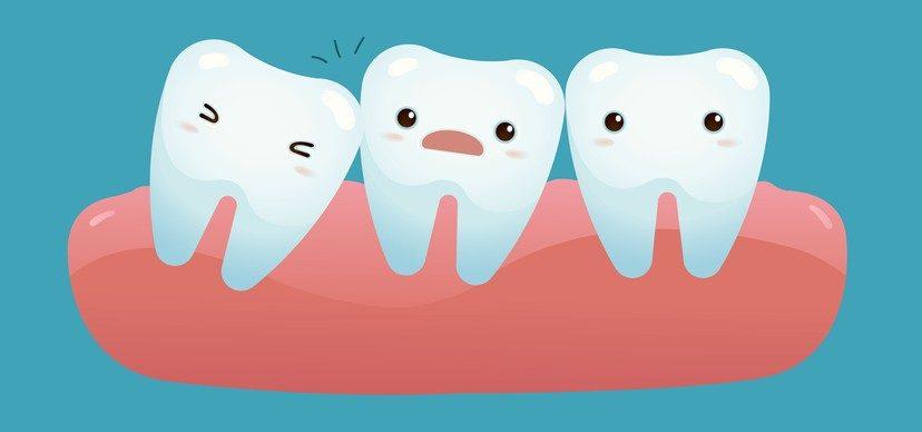 Зачем нужны зубы мудрости