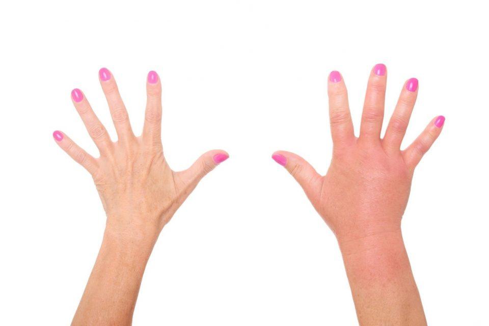 руки укус осы