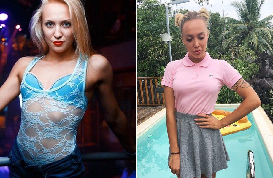 Лиза Полыгалова до и после пластики