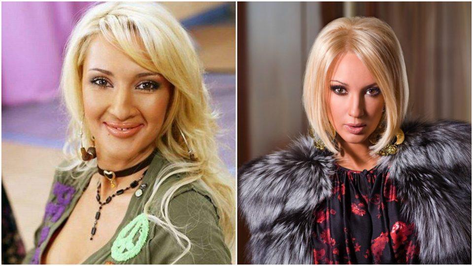 лобода до и после пластики фото