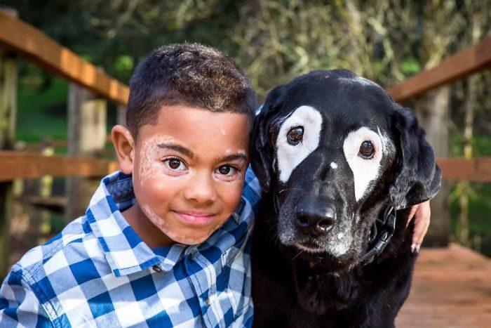 Мальчик с витилиго ненавидел свою внешность до встречи с уникальным псом
