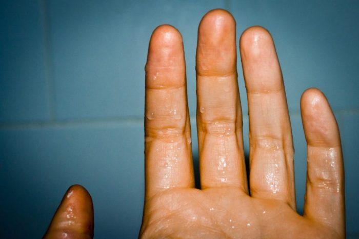 Потеют ладони рук и ступни ног. Как побороть гипергидроз?